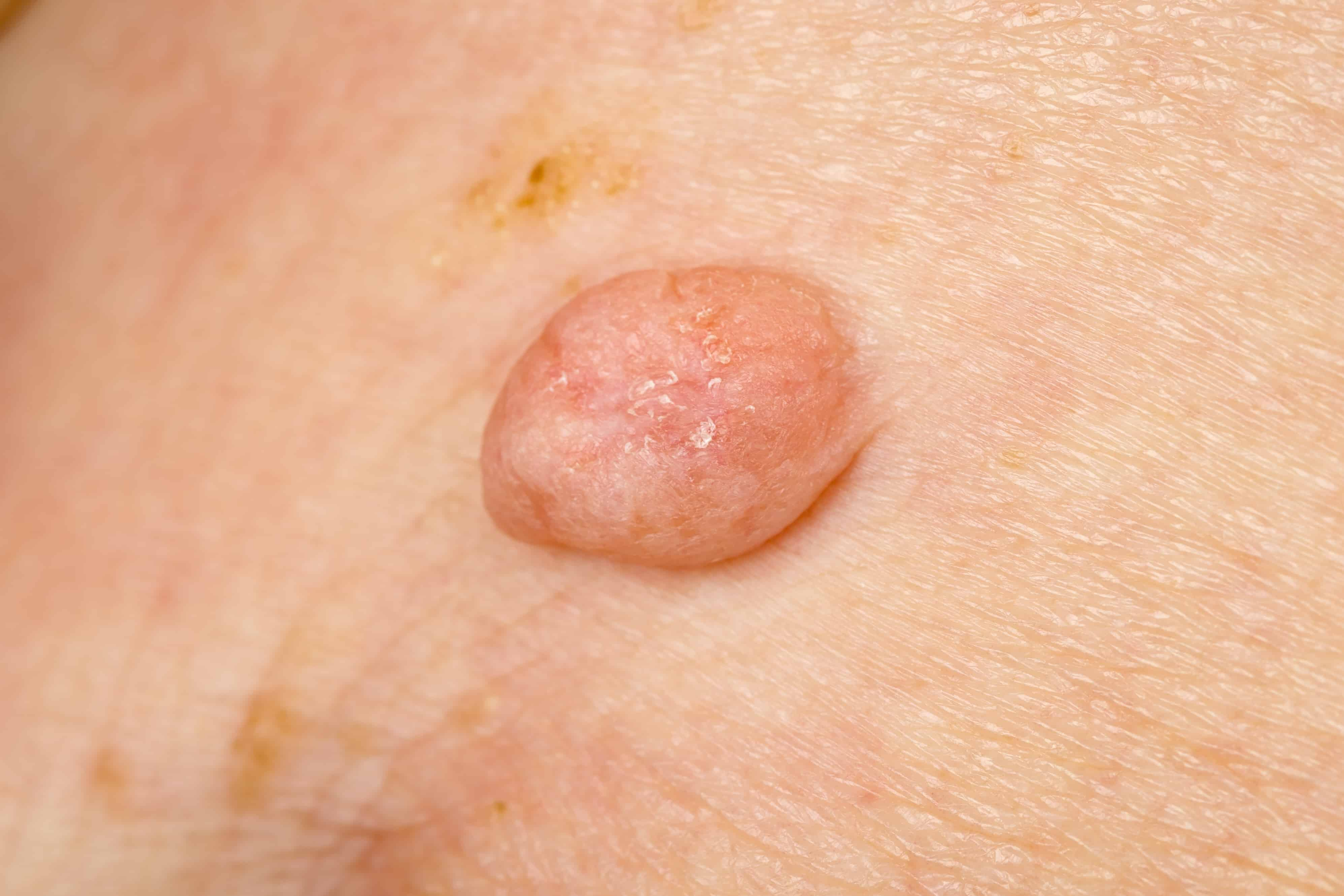 what to do about genital warts